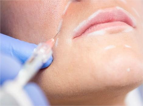 meilleur chirurgien esthetique acide hyaluronique botox