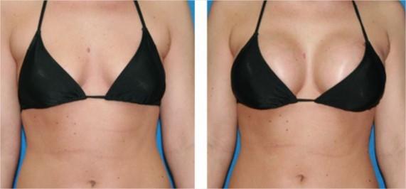 augmentation mammaire composite-